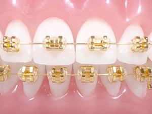 Types Of Braces Keenan Orthodontics